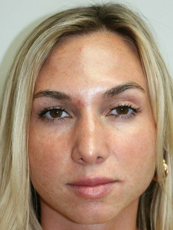 Rhinoplasty Miami | Best Nose Job Miami